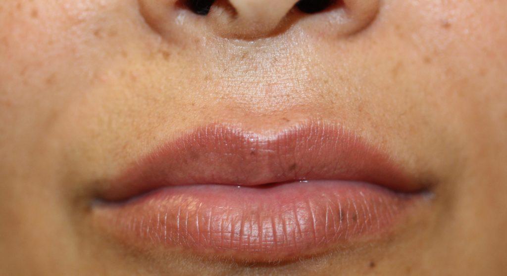 Lips 3 before