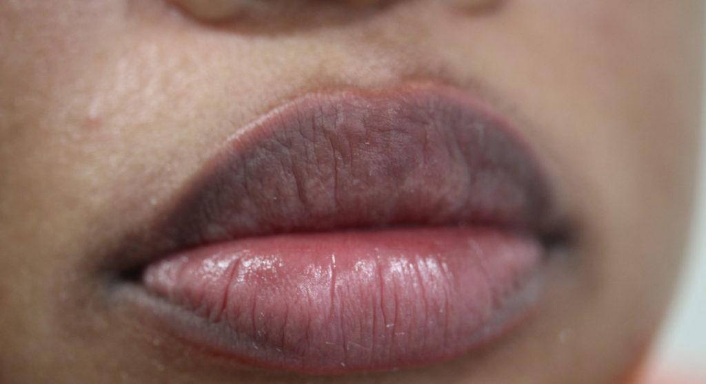 Lips 4 before