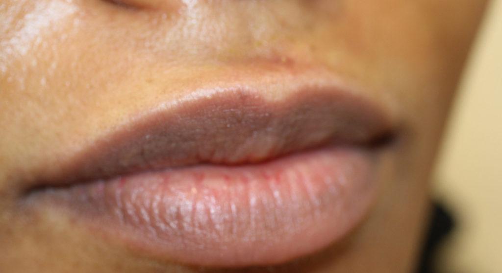 Lips 6 before