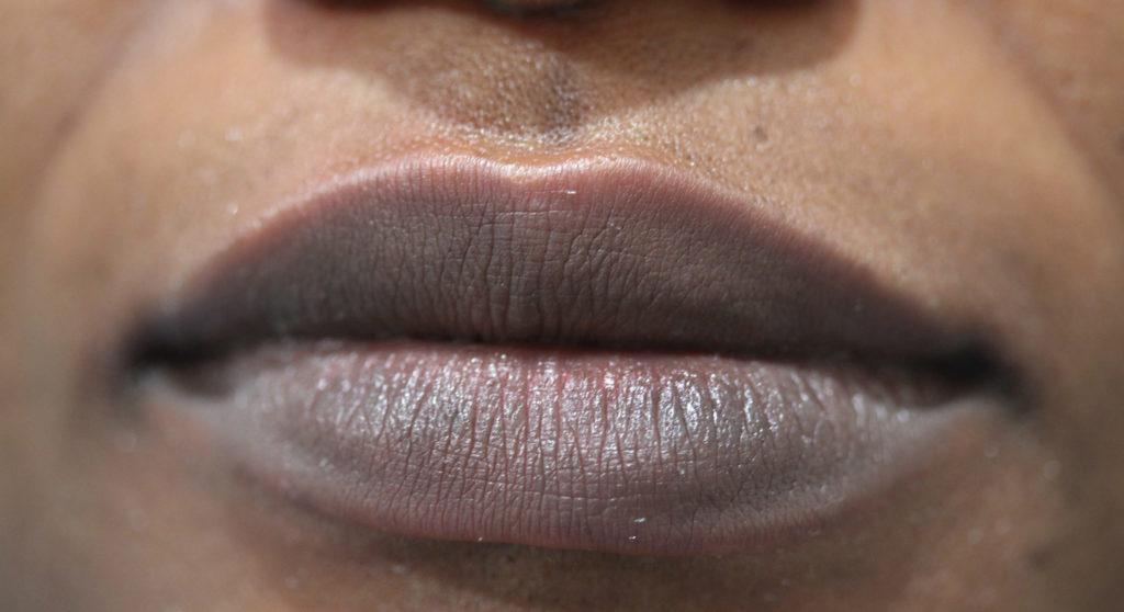 Lips 7 before