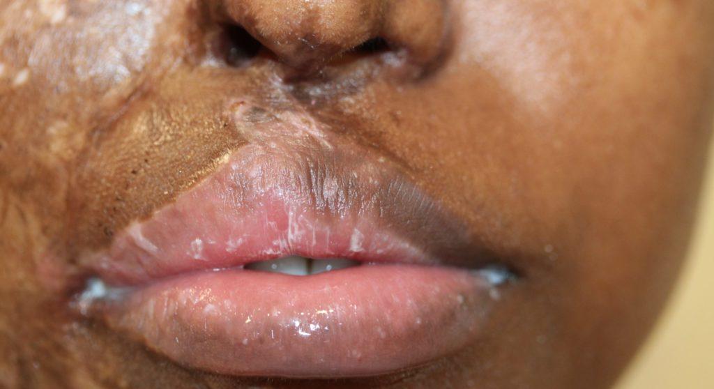 Lips 9 before