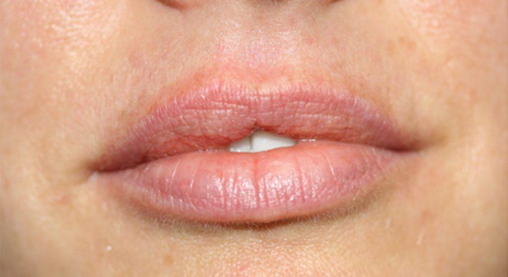 ruth-swissa-permanent-lipstick-permanent-full-lips